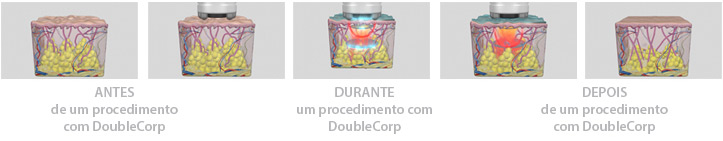 DoubleCorp