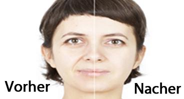 Vorher und Nacher Lippenvergrösserung und Gesichtsmodellierung mit Implantaten