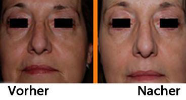 Vorher und Nacher Facial Pulsonic
