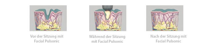 Facial Pulsonic