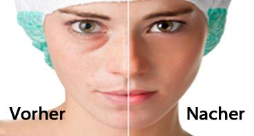 Vorher und Nacher Gesichts-Mesotherapie mit Vitaminen