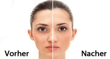 Vorher und Nacher Chemisches Peeling