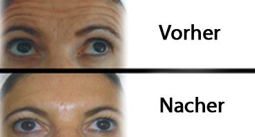 Vorher und Nacher Botulinumtoxin Typ A